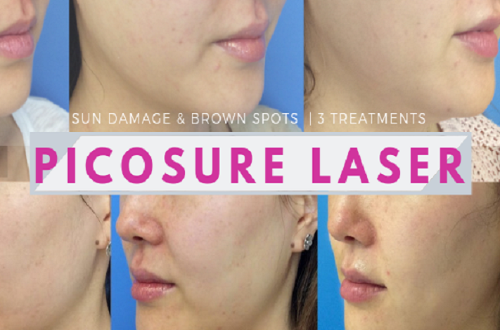 Picosure Laser Review Before After Photos Organic Beauty Lover