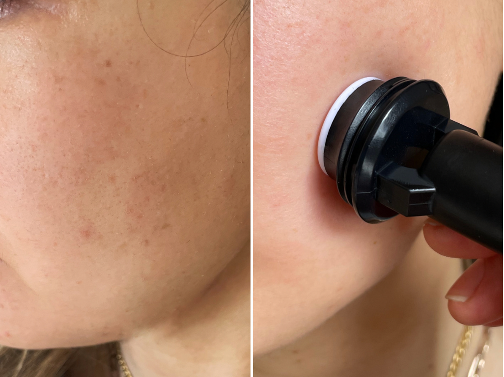 Banish acne scars before after